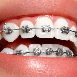 brackets-ortodoncia-dr-gallardo-ortodoncistajaen